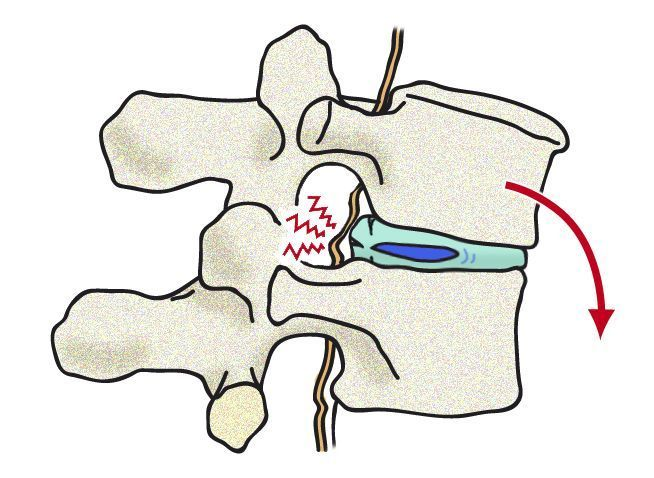 vertebras copia