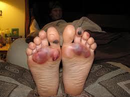 barefoot ko
