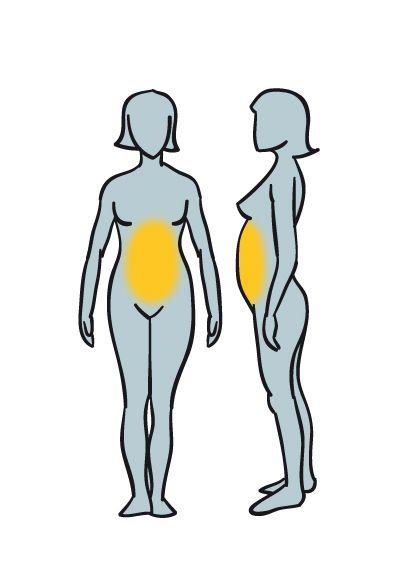 obesidad abdo nerviosa
